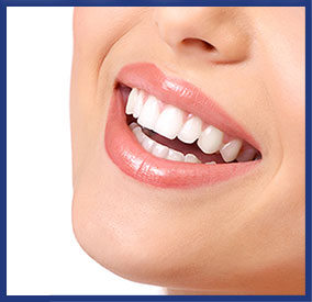Dental Veneers Dentsit Anderson SC